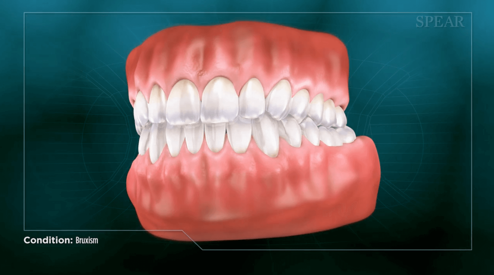 Finding treatment for bruxism and sleep apnea in San Jose.
