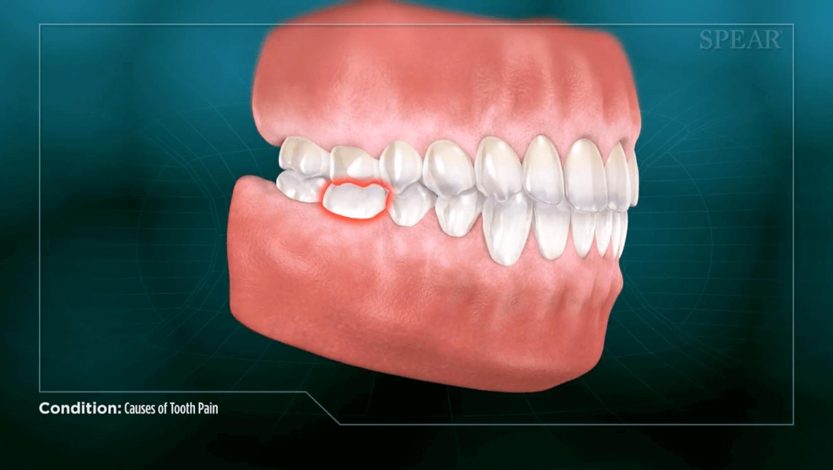 Understanding tooth extractions in San Jose.