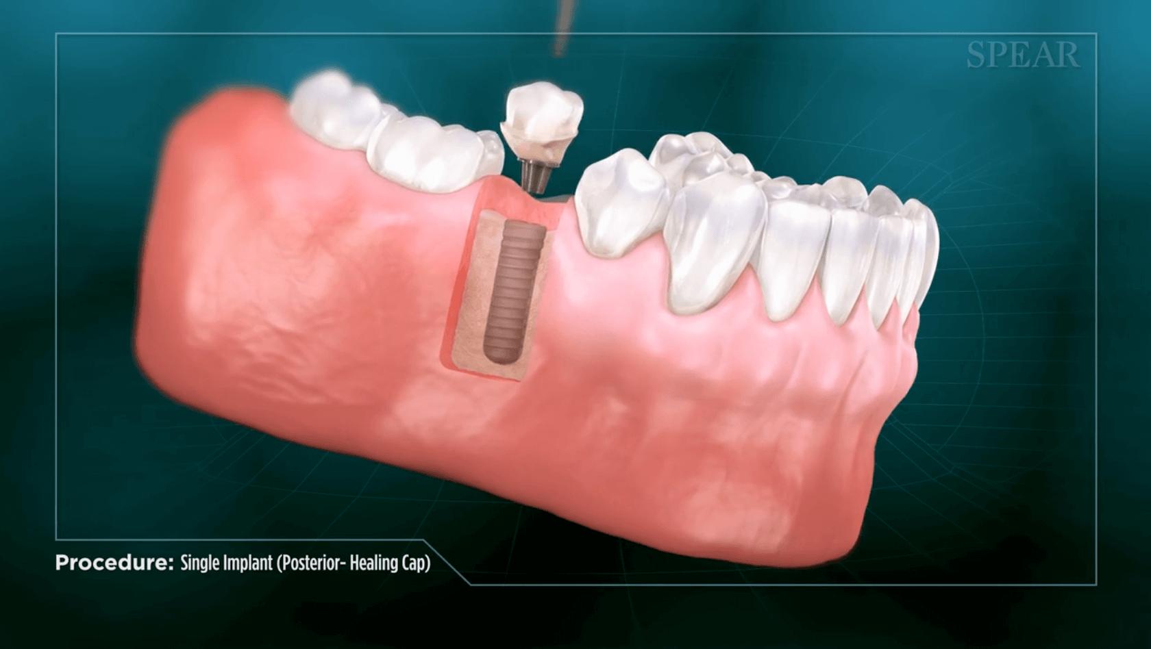 Receiving a dental implant in San Jose.