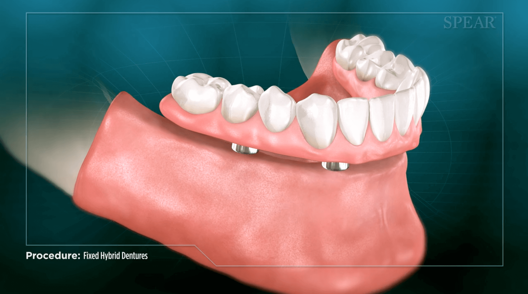 Finding out if you need fixed hybrid dentures in San Jose.