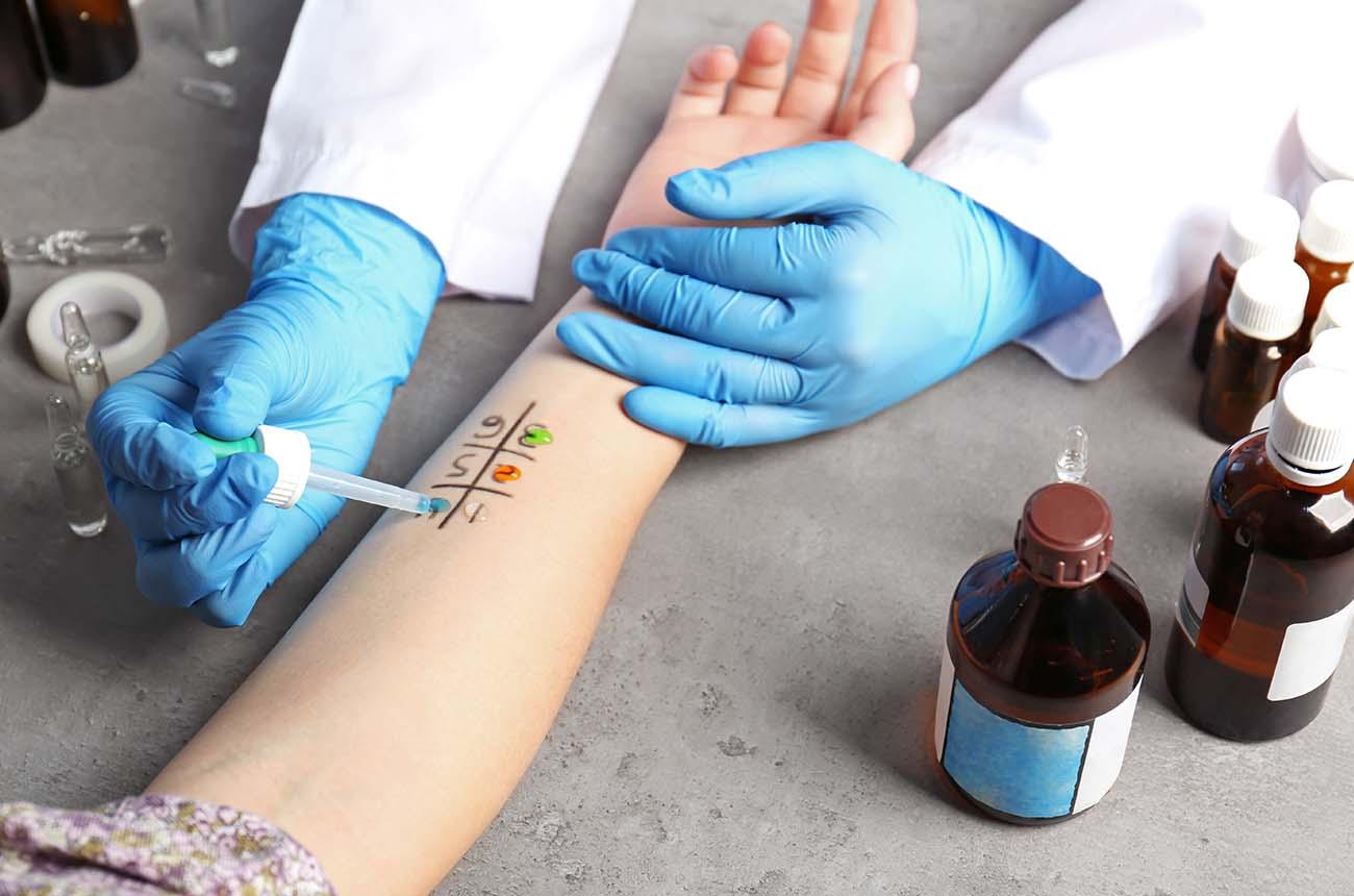 Allergy Test On Arm