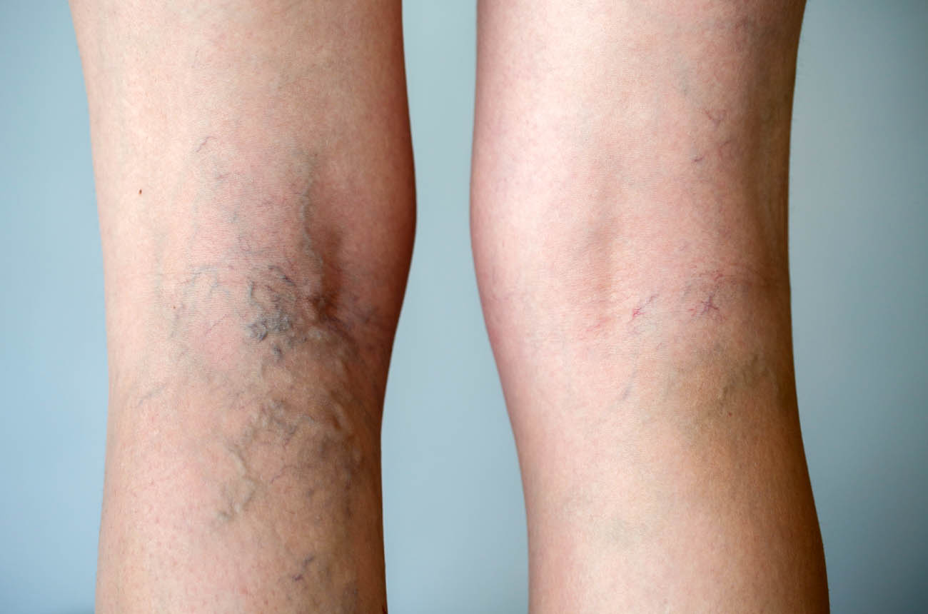 Vein Removal Treatment Before & After