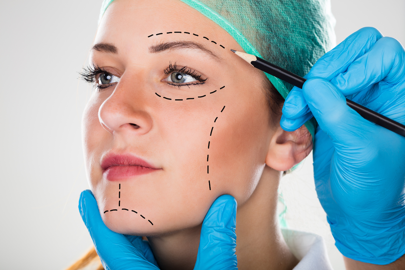 surgeon drawing lines on woman's face before facelift
