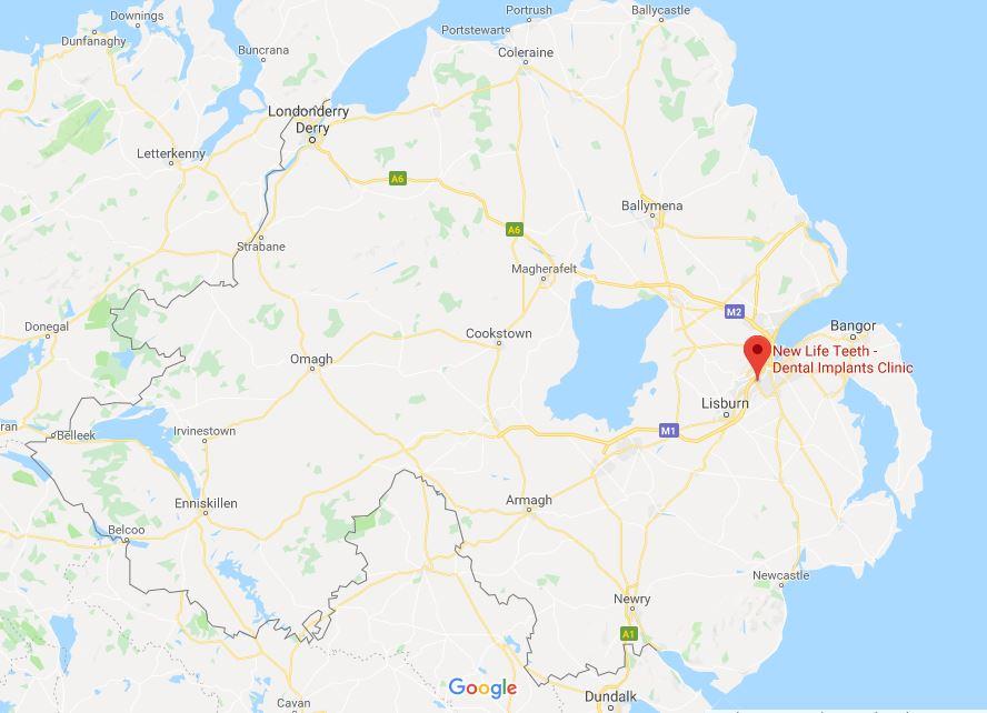 dental implants northern ireland