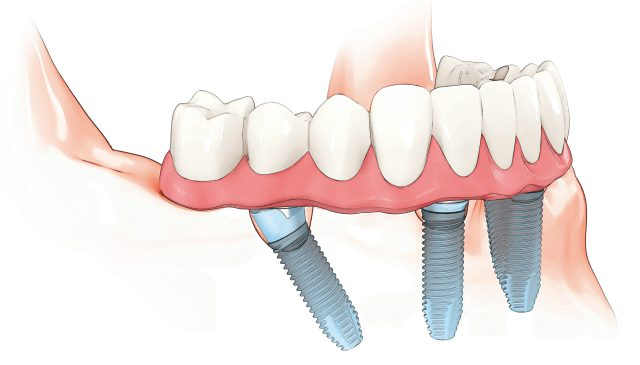 all on 4 dental implants edinburgh