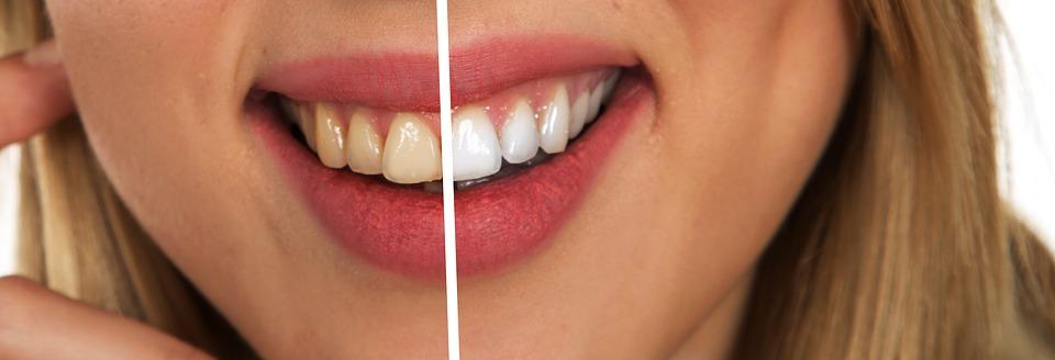 protect dental implants