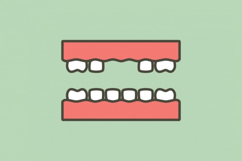 dental implants scotland nhs