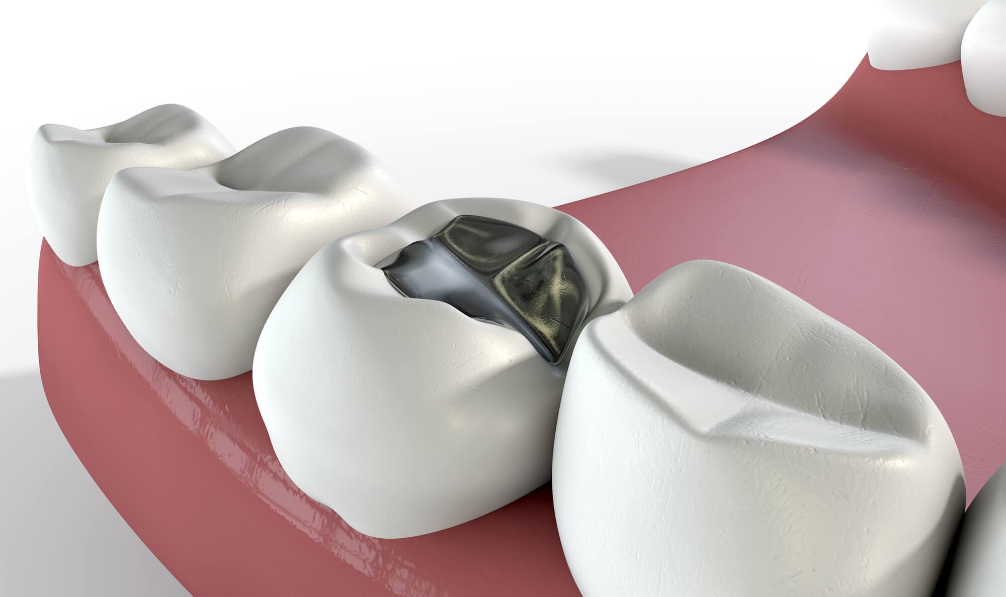 A model of dental fillingsin conroe