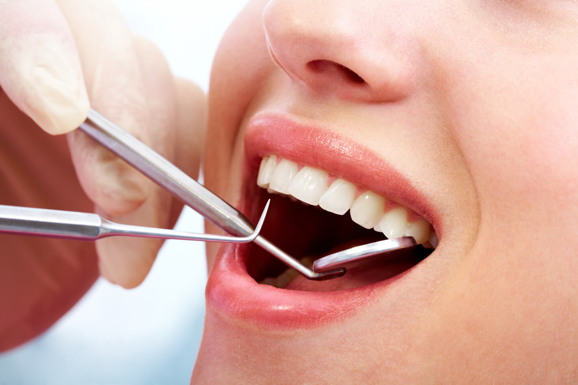 A closeup of a patient's mouth getting dental fillingsin conroe