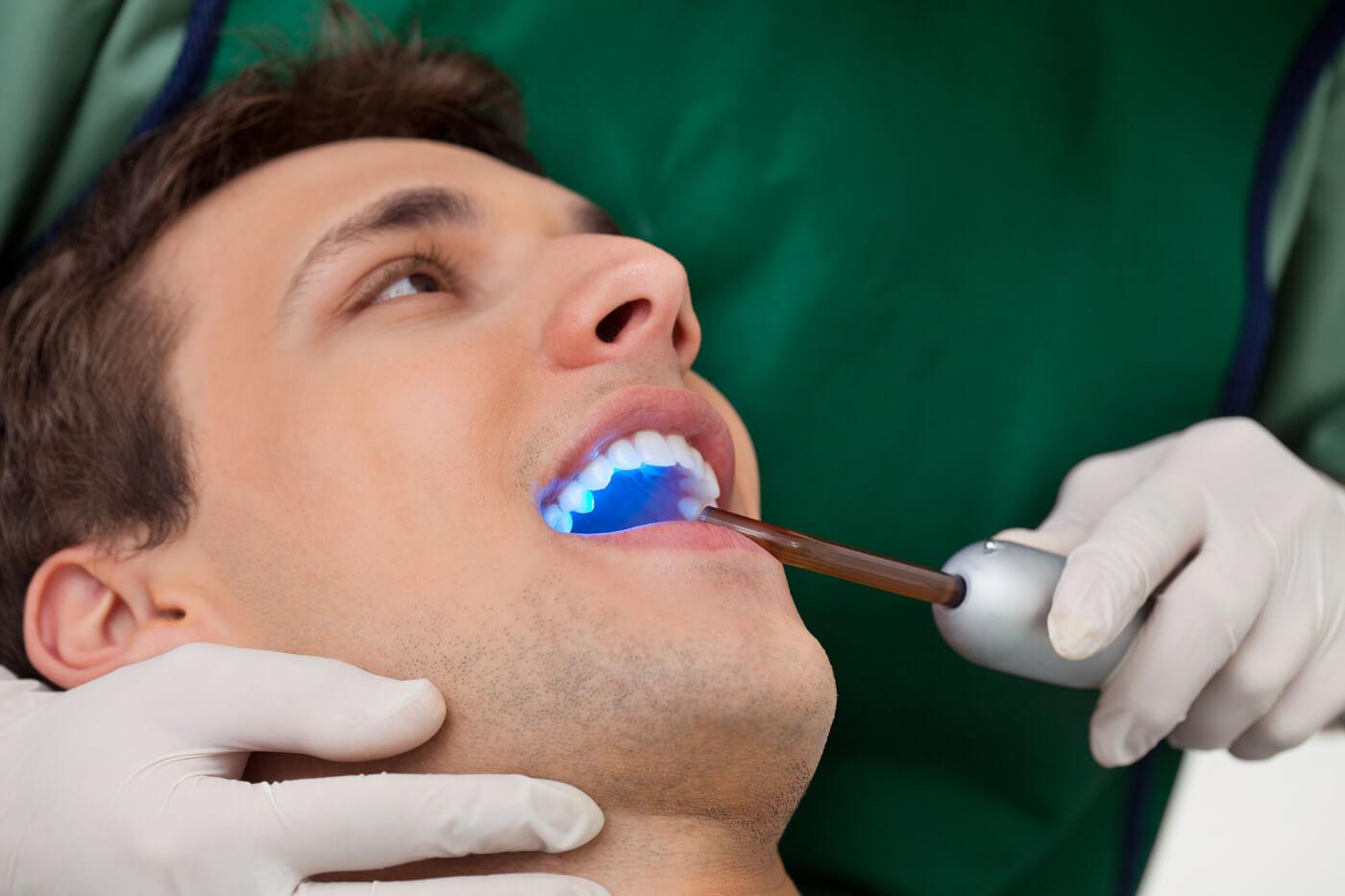 Man getting dental sealants in Conroe, TX