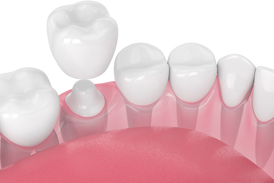 Animation of a dental crown