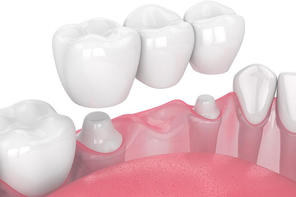Animation of a dental bridge