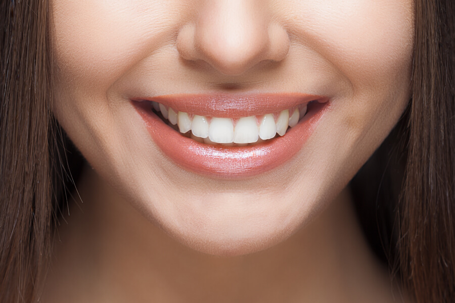 Woman smiling after dental treatment