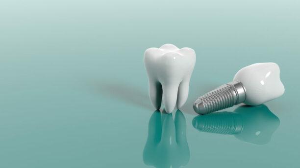 Kas yra ir kiek kainuoja dantų implantai?