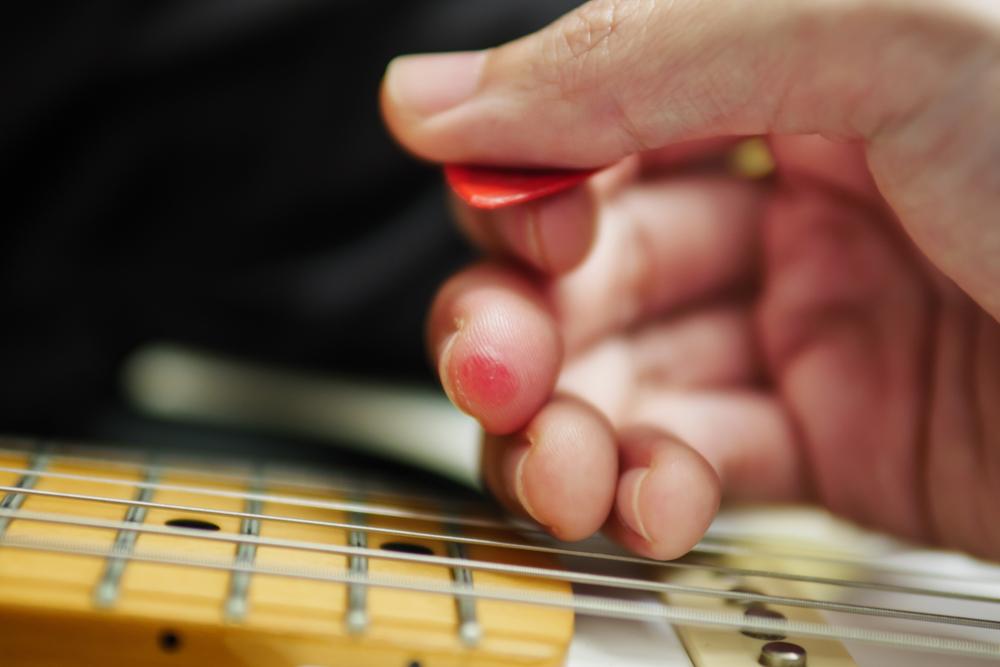 Gitaros stygų sukeltos nuospaudos