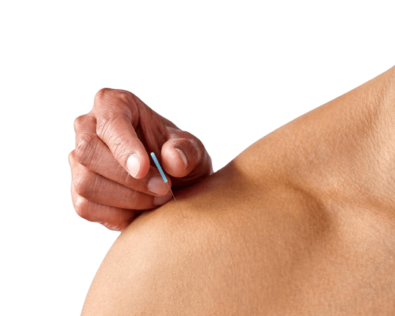 Dr. Rances performing acupuncture on shoulder