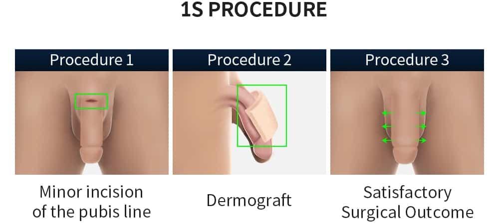1s procedure graft engrafting illustration