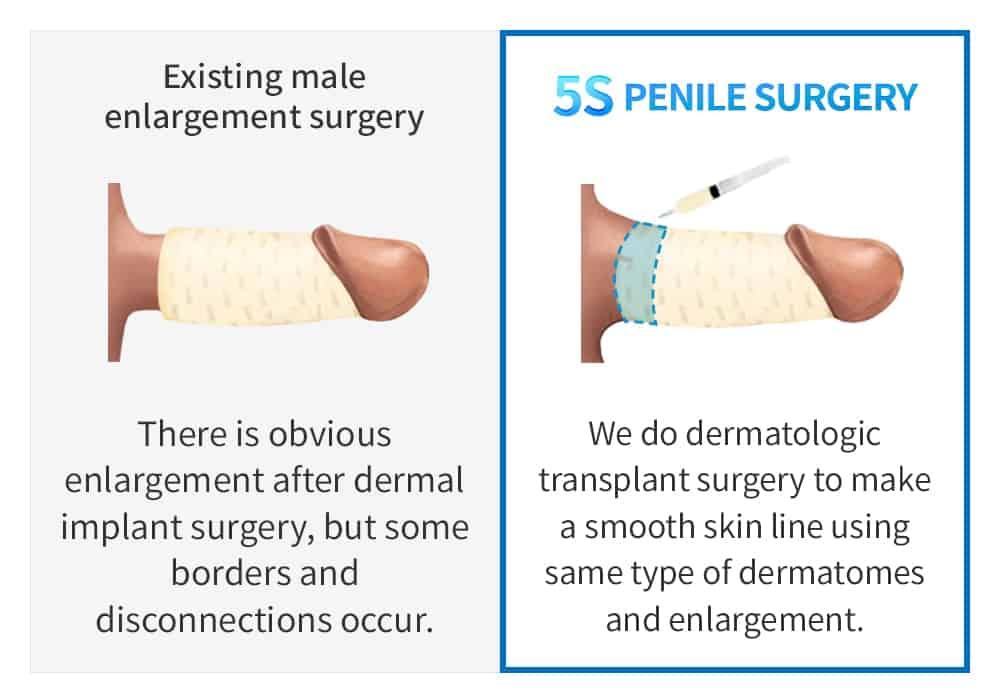 existing male enlargement surgery vs 5s penis enlargement surgery