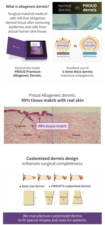 allogeneic dermis comparison
