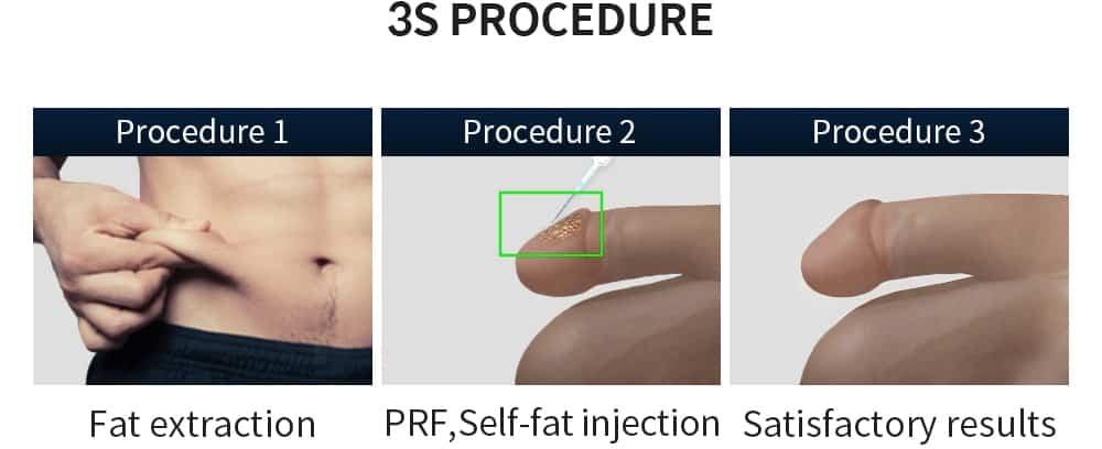 3s procedure