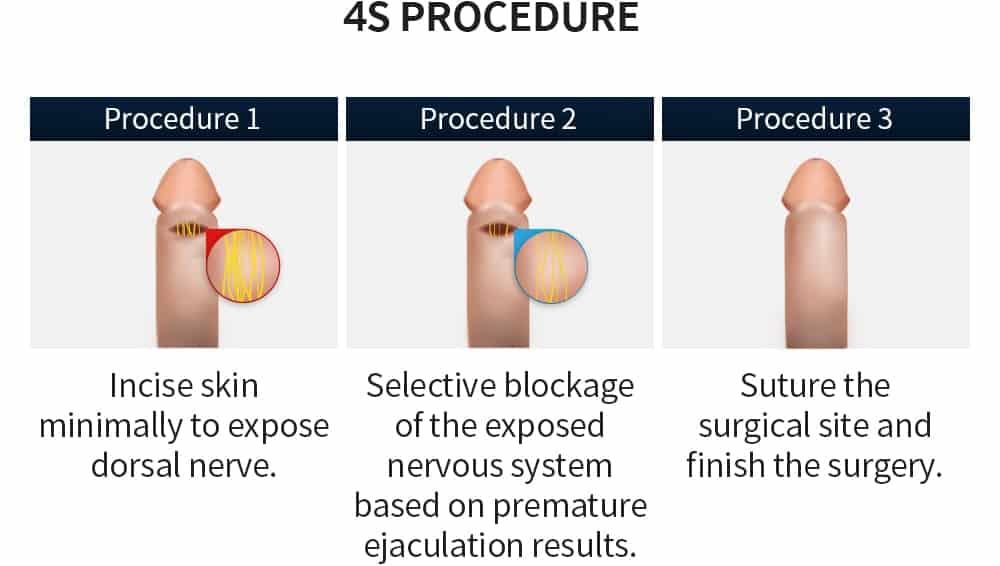 4s procedure