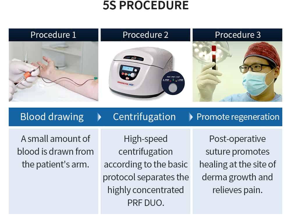 5s procedure