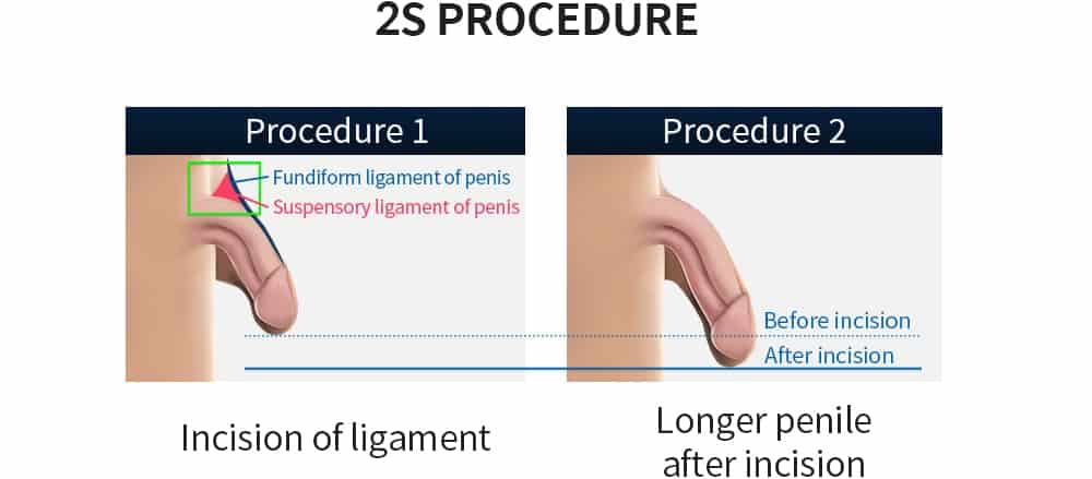 2s procedure illustration