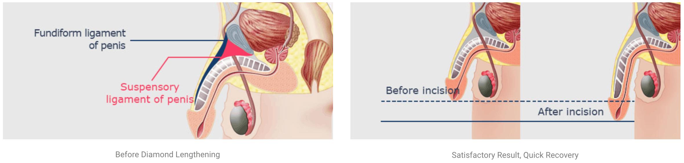 ligament cutting illustration