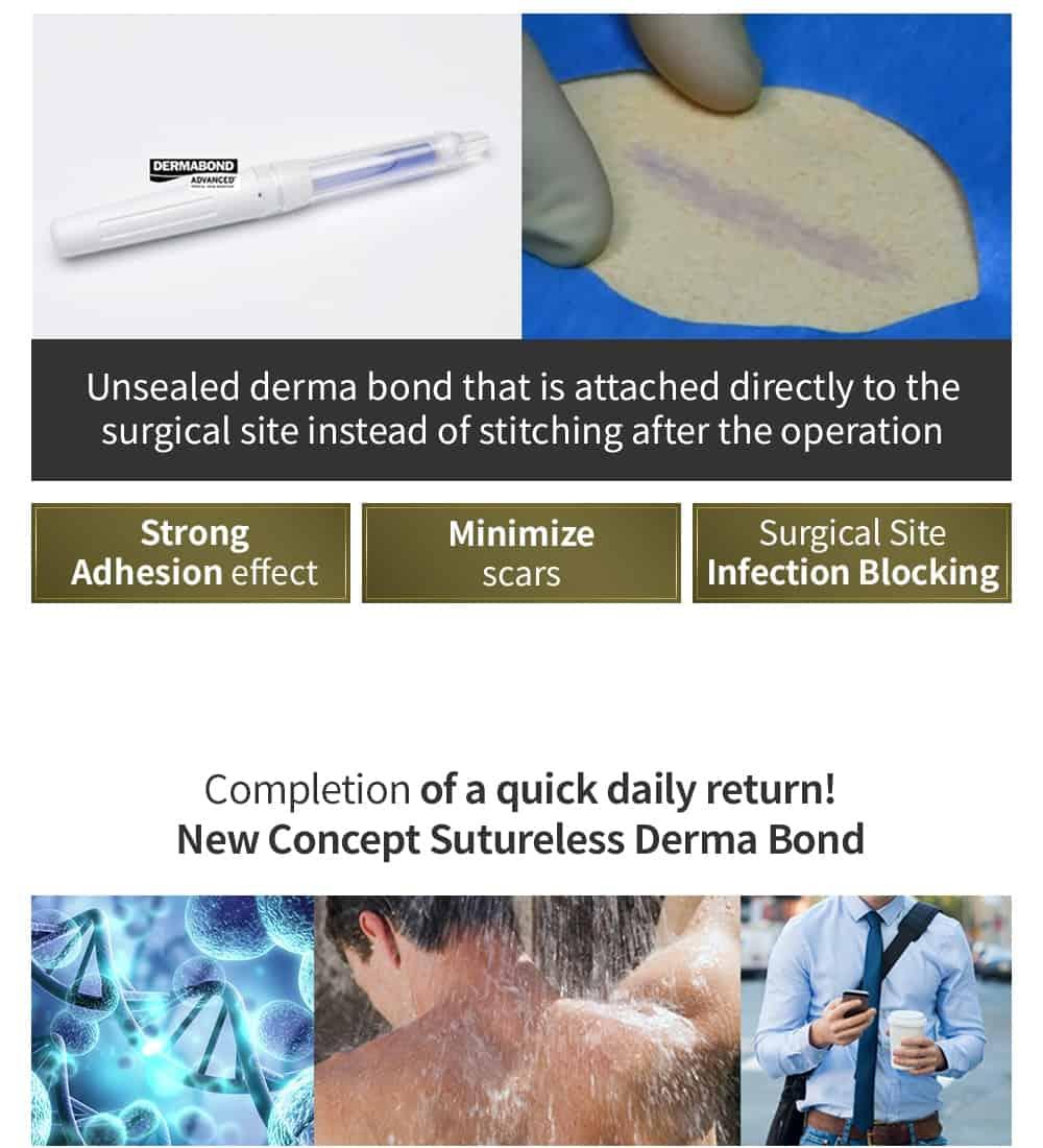derma bond (dissolvable stitches)