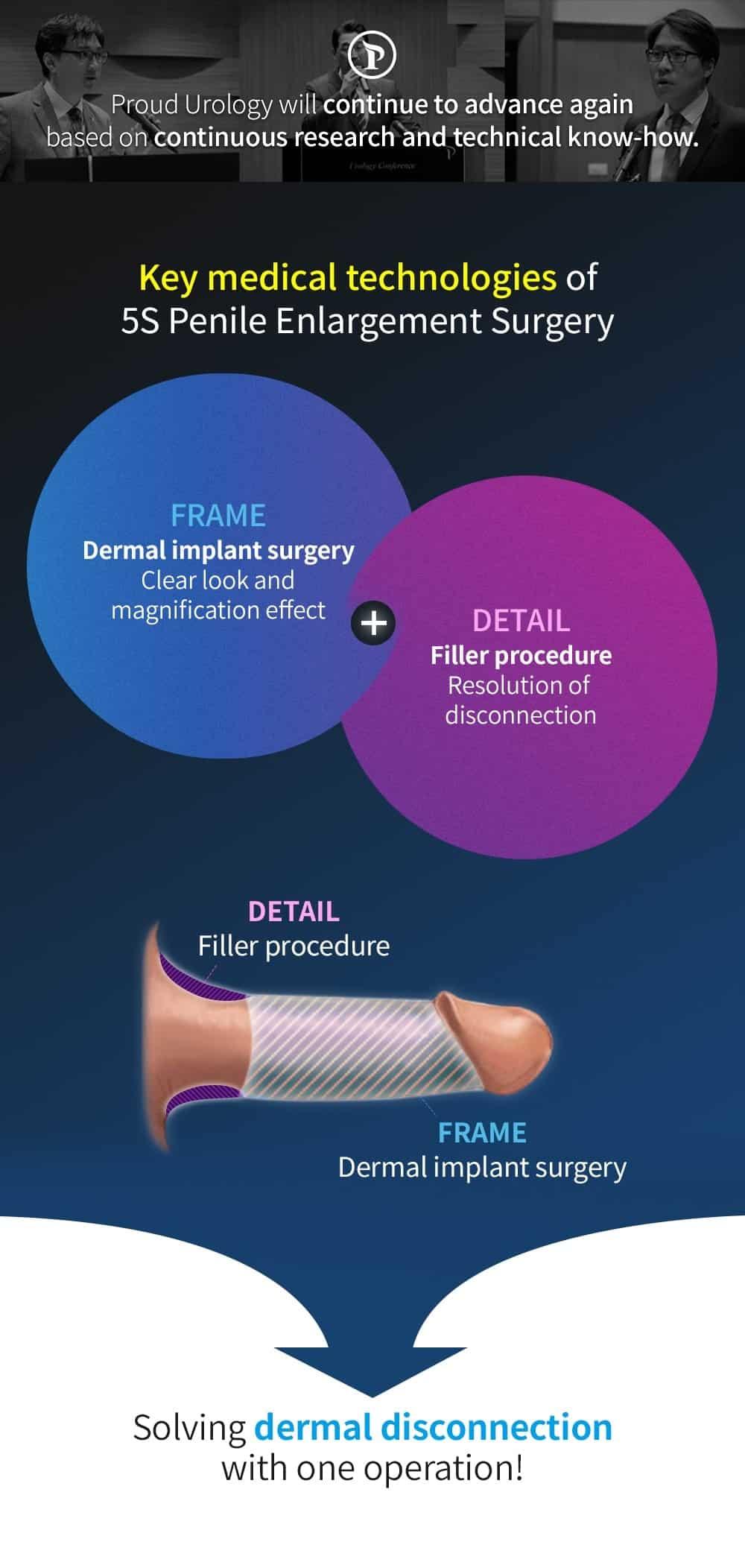 5s penis enlargement surgery innovative technology description