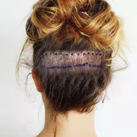 Photo of a hair transplant surgery scar - back of woman's head