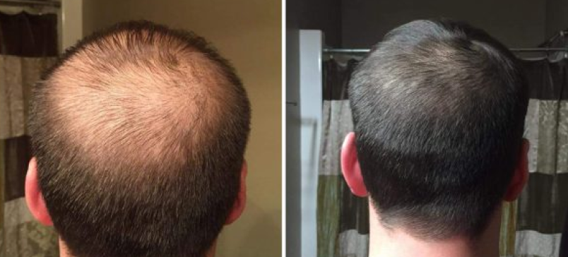 male pattern hair restoration before and after photos - prp, microneedling, and ipl therapies