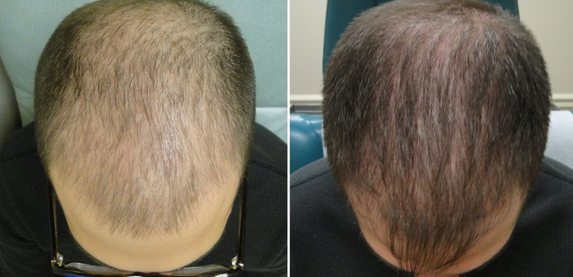 male hair restoration before and after photos