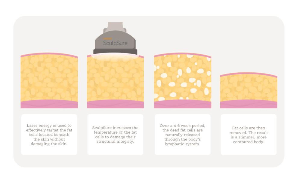 diagram illustrating how laser liposuction / laser fat reduction works