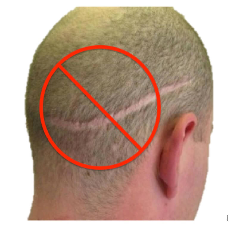 scar photo from hair transplant surgery