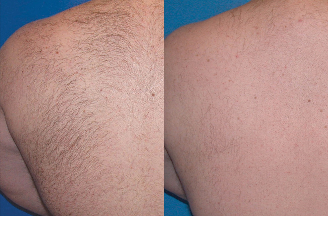 laser hair removal before and after photos - back hair