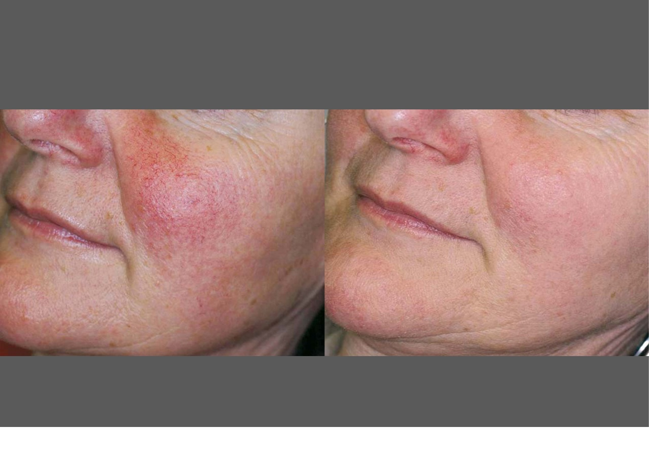 IPL photofacial before/after - face rosacea