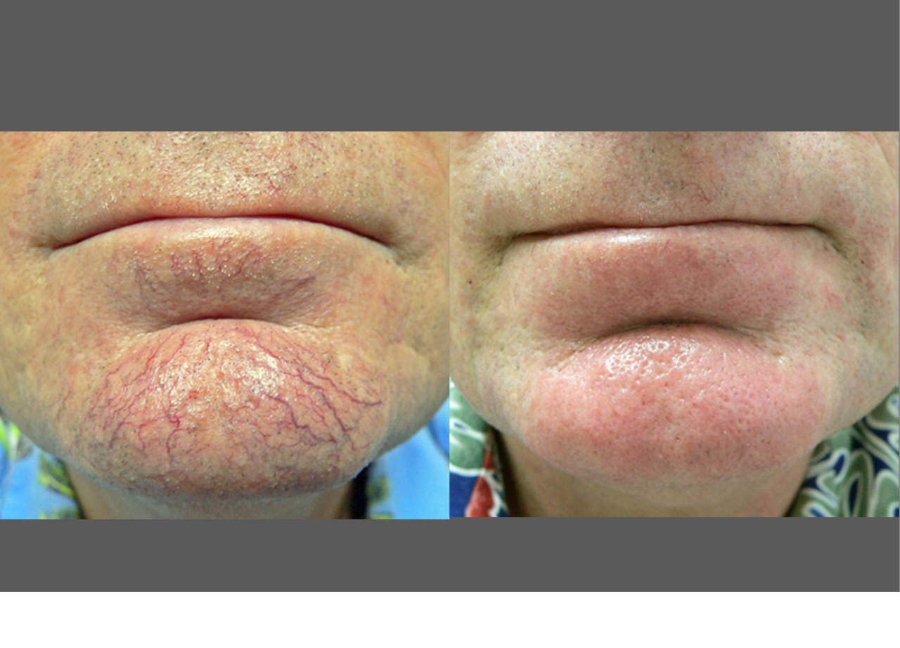 IPL photofacial before/after image - chin, vessels