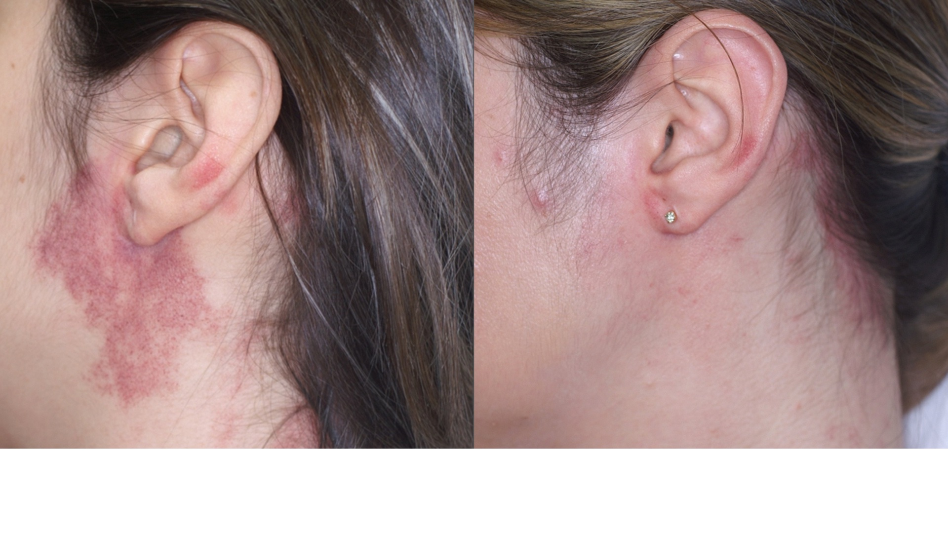 IPL photofacial before/after image — ears and cheek