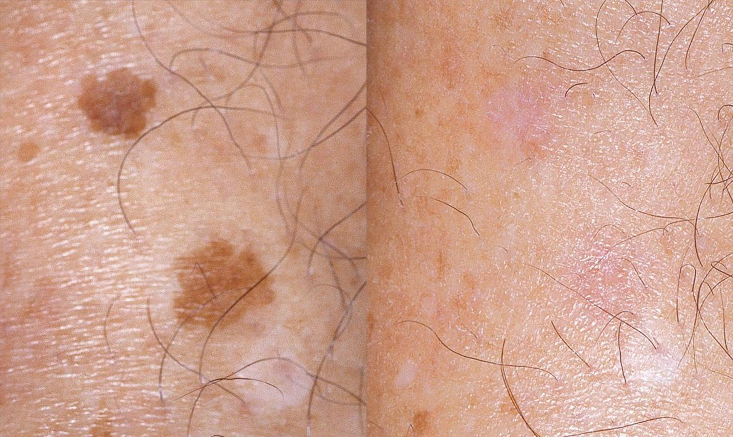 before and after photo illustrating IPL photofacials to cure age/brown spots and skin discoloration