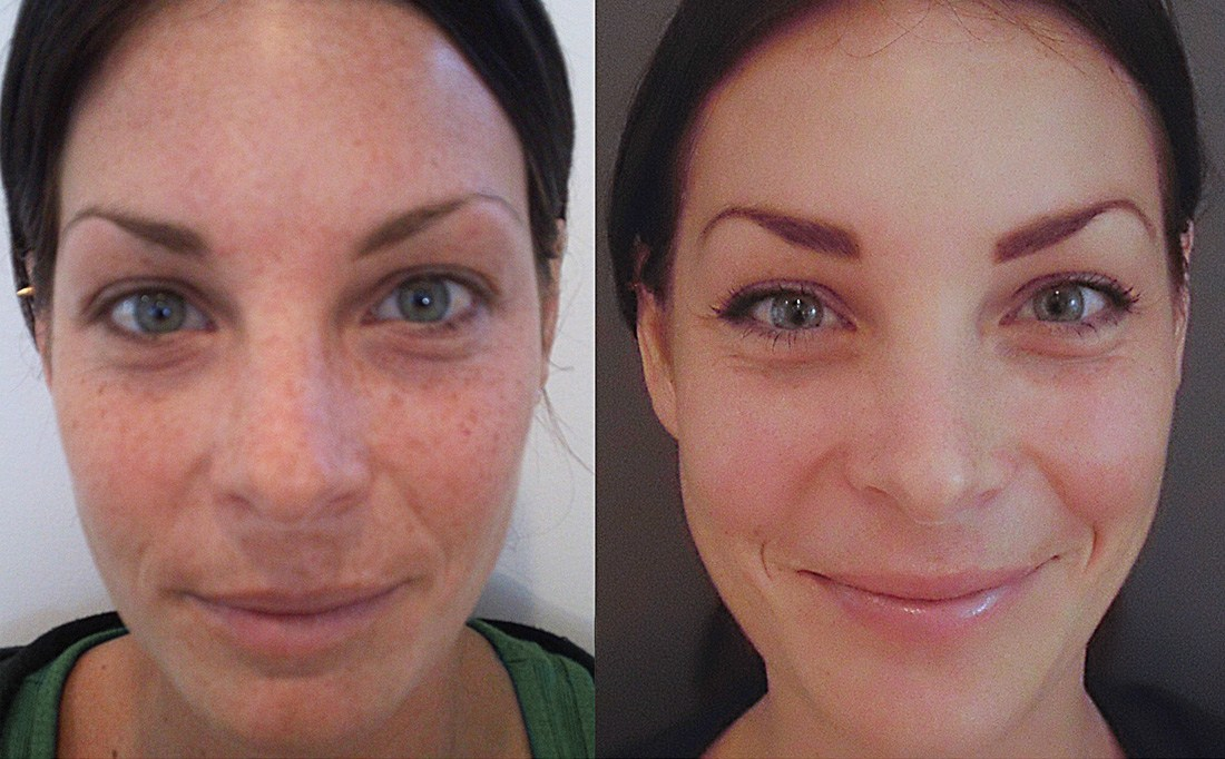 chemical peels before and after photos - cure for face blemishes