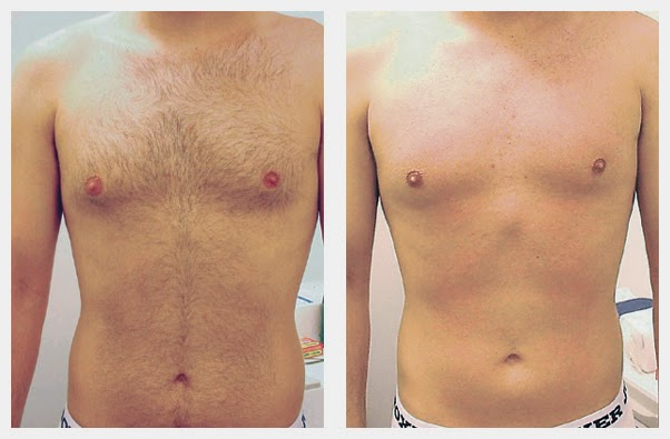 laser hair removal before and after photo - chest hair