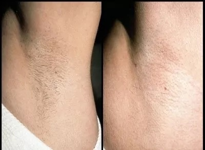 laser hair removal before and after photo - neck hair