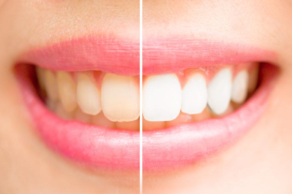Разлика между неизмити и измити зъби