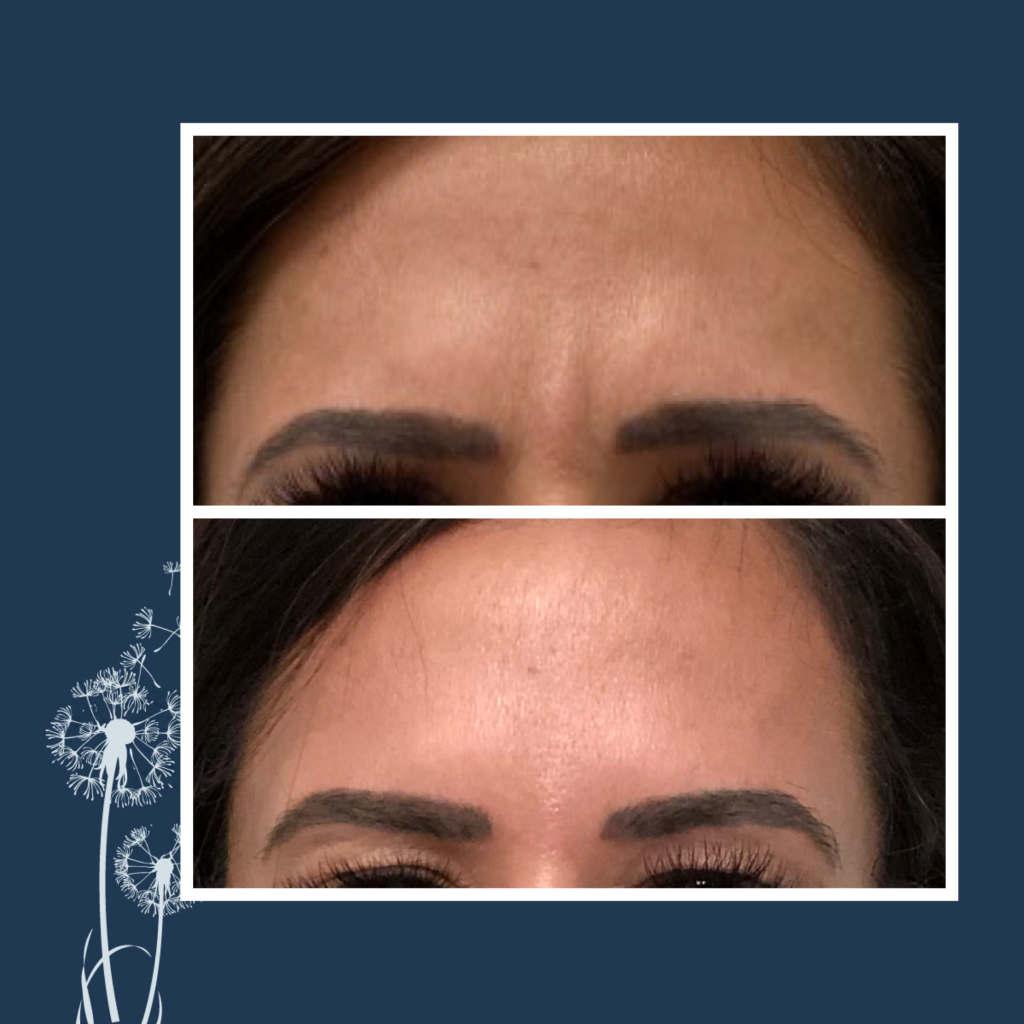 Botox - Forehead