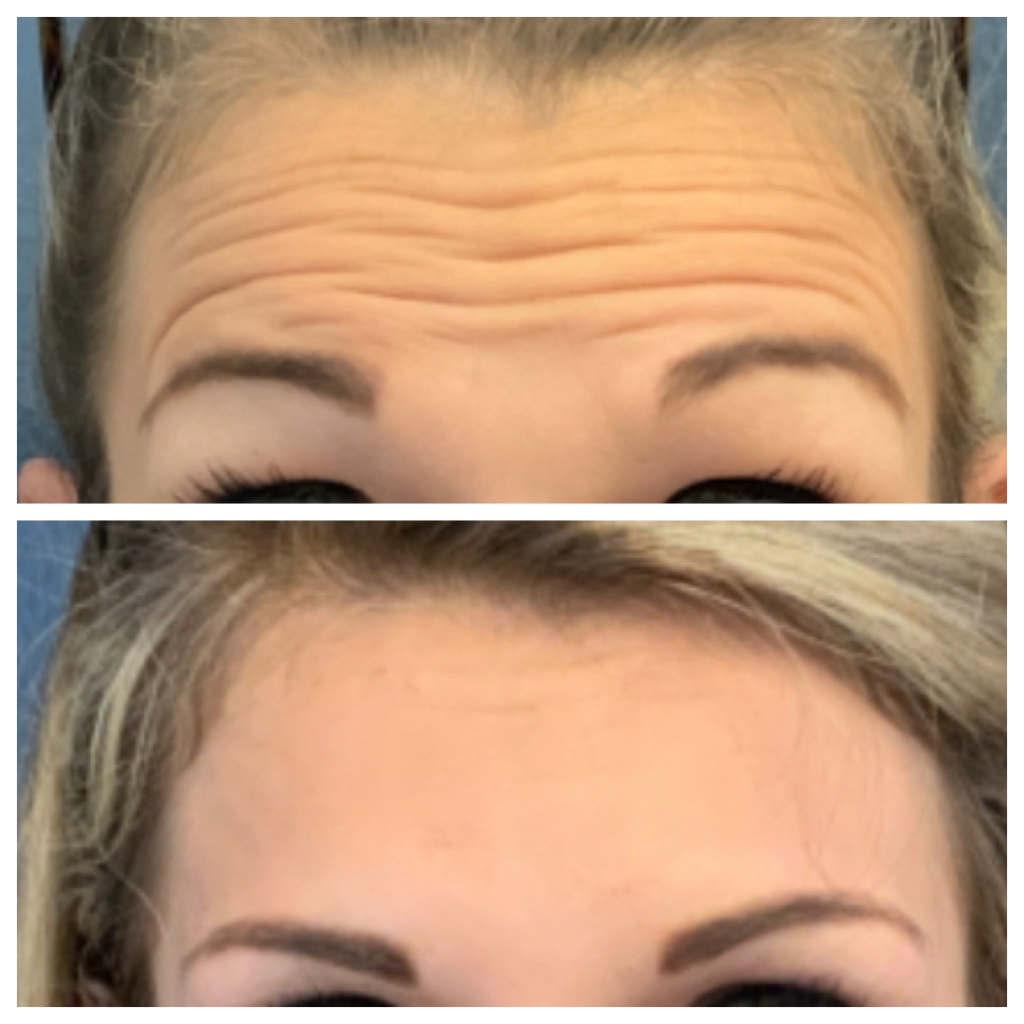 Dysport - Forehead