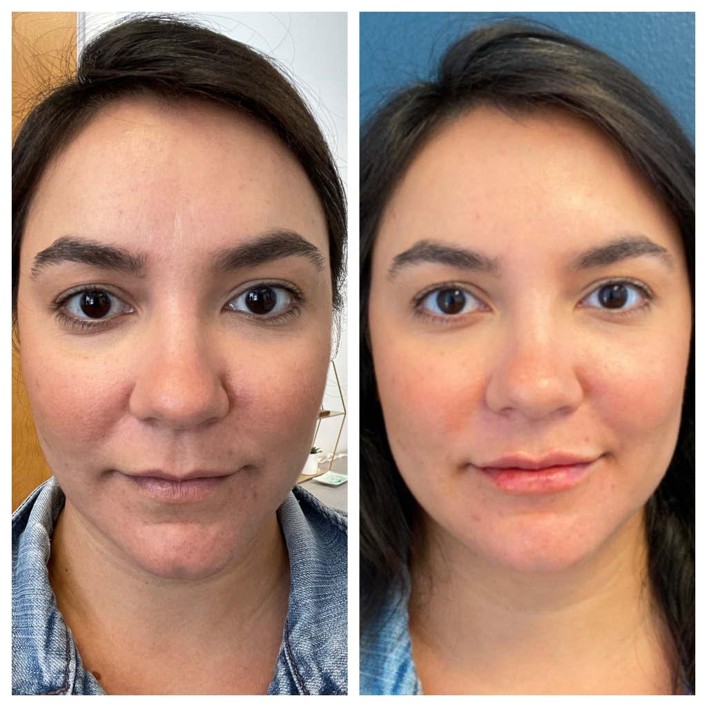 Lip Augmentation / Filler