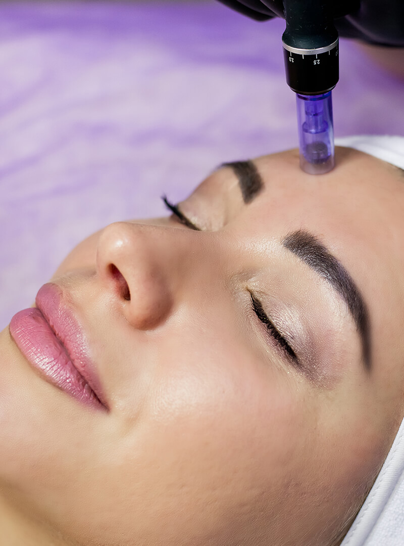 Microneedling with PRF