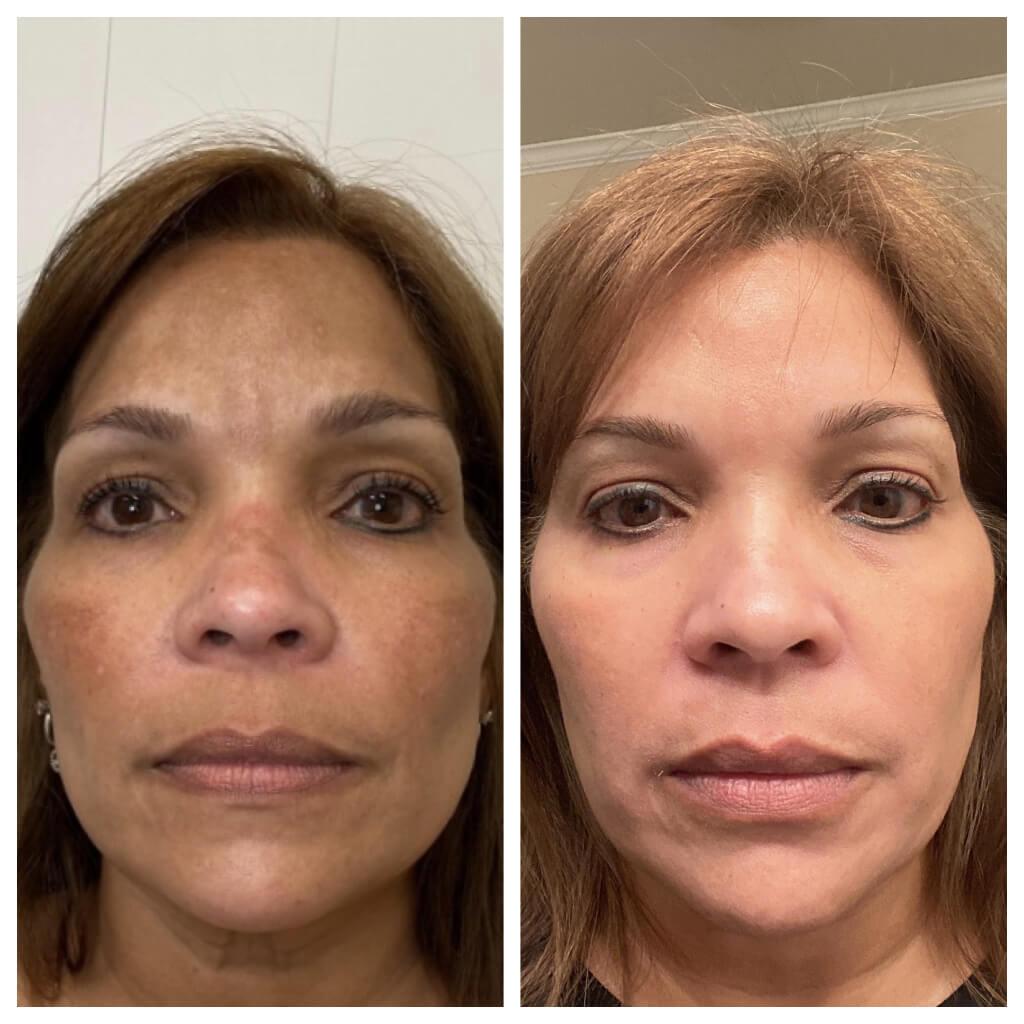 ZO Skin Health Prescription Pigment Control Program + Hydroquinone Skincare Regimen
