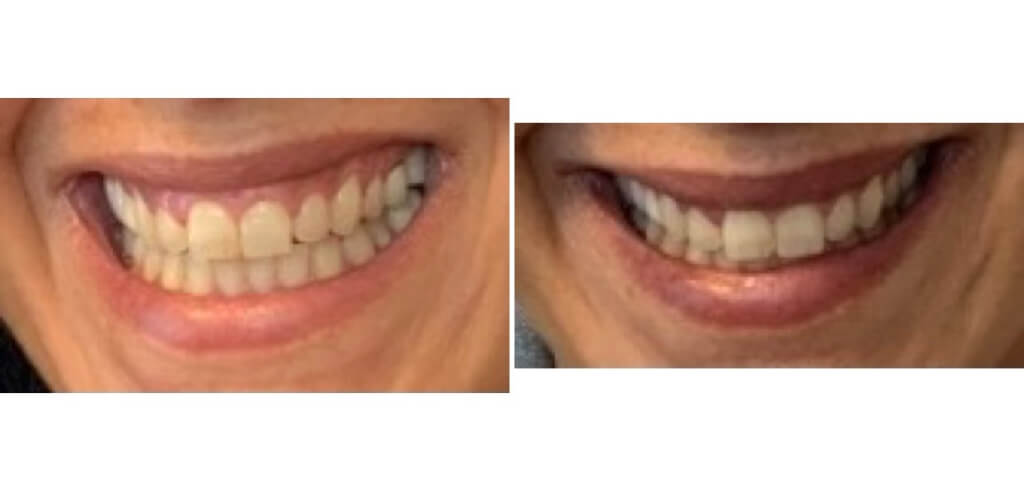 Botox - Lip Flip and Gummy Smile